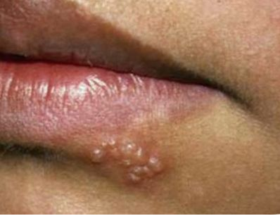 oral herpes treat cold sores